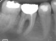 Roberta Si rivolge presso il nostro studio per evitare l'estrazione del dente 36