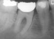 Decido di ritrattare endodonticamente il dente in questione