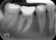 Il dente viene recuperato copn una corretta terapia endodontica. Roberta non perde il dente